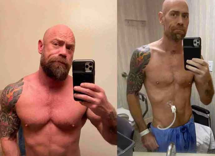 Shocking Before & After Photos Of Physically Fit Coronavirus Patient Show Gravity Of Virus