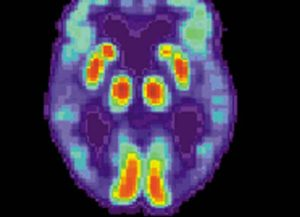 PET scan of person with Alzheimer's disease (Image: Wikimedia)