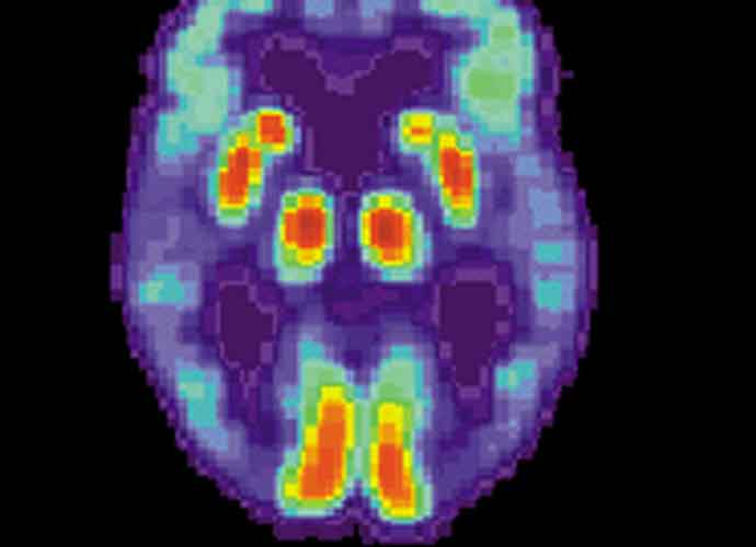 Biogen's New Alzheimer's Drug, Aduhelm, Comes With $56,000 Annual Cost